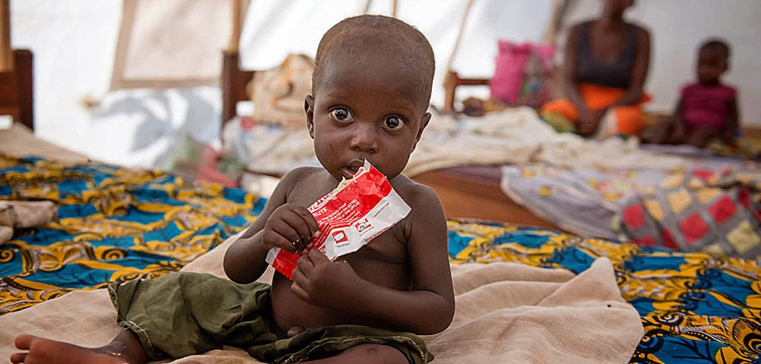 Food For Malnutrition Babies