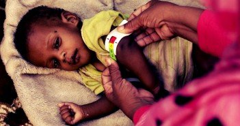 Malnutrition in Comoros