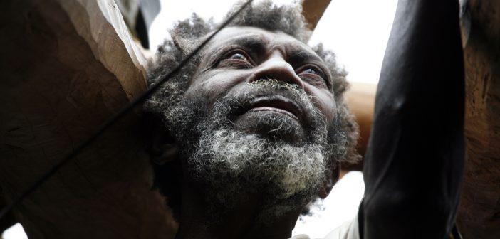 Common Diseases in Vanuatu